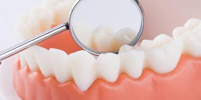 口腔义齿制造专业是什么?